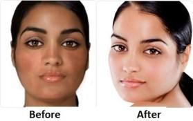 Barbbytes Skin-Lightening